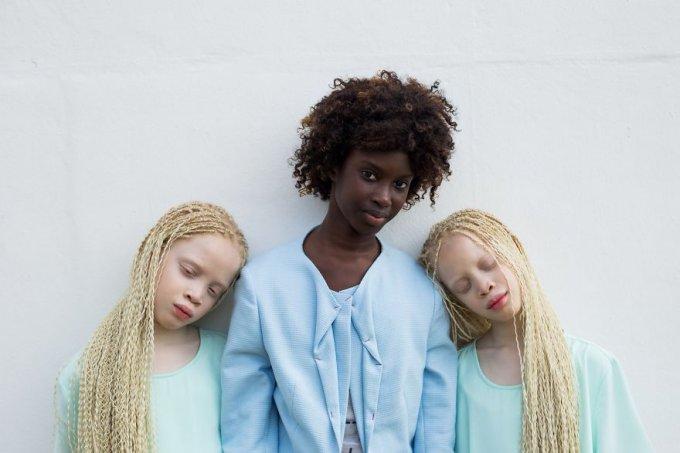 Estas gemelas albinas brasileñas están conquistando la industria de la moda con su belleza única